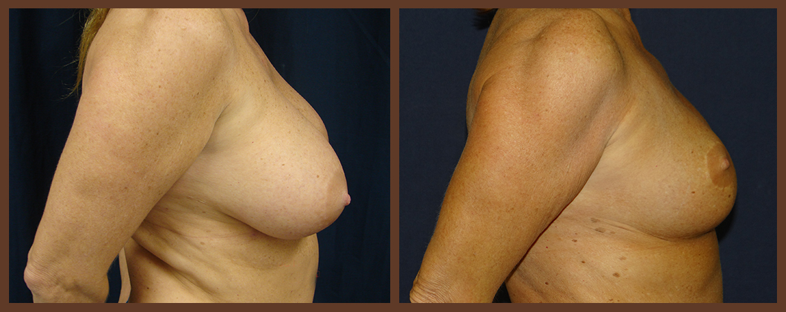 breast-reduction-before-and-after-2-virginia-beach-plastic-surgeon-VA-0043-denk