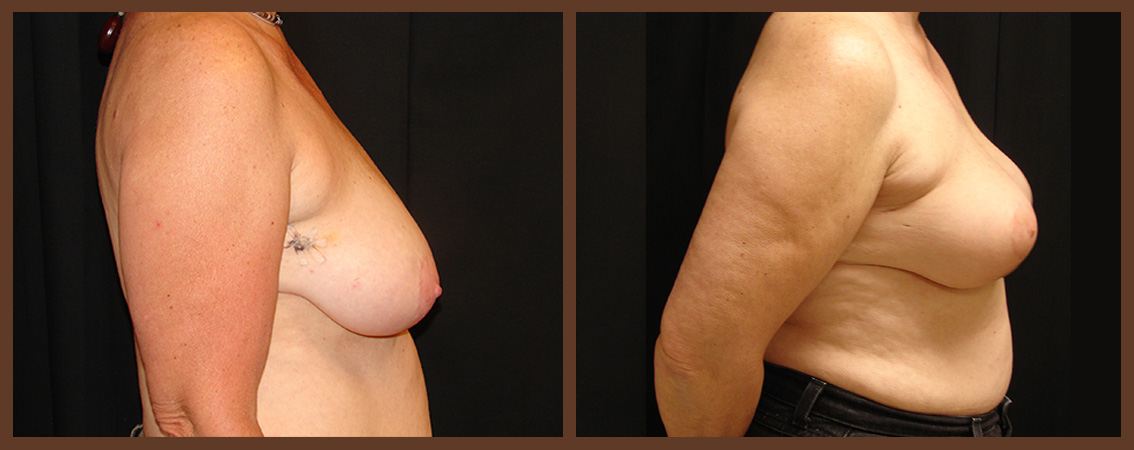 breast-reduction-before-and-after-2-virginia-beach-plastic-surgeon-VA-0044-denk