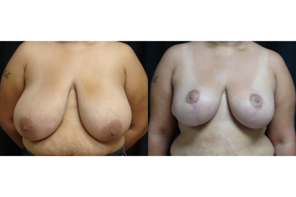 breast-reduction-before-and-after-virginia-beach-plastic-surgeon-VA-101-JSA