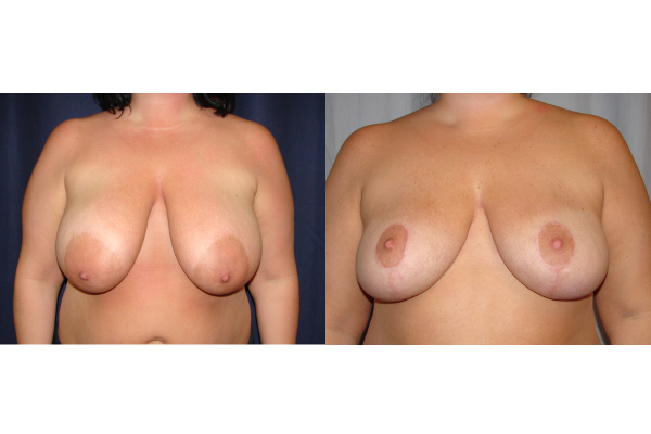 breast-reduction-before-and-after-virginia-beach-plastic-surgeon-VA-101-JSJ