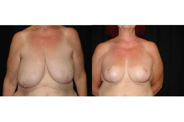 breast-reduction-before-and-after-virginia-beach-plastic-surgeon-VA-101-MJD