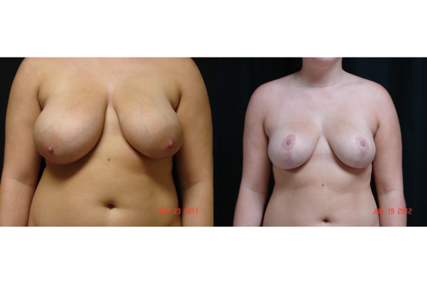 breast-reduction-before-and-after-virginia-beach-plastic-surgeon-VA-102-JSA