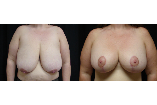 breast-reduction-before-and-after-virginia-beach-plastic-surgeon-VA-102-JSJ