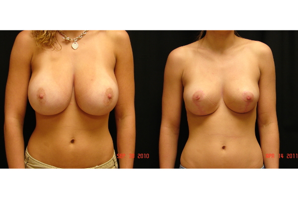 breast-reduction-before-and-after-virginia-beach-plastic-surgeon-VA-103-JSA