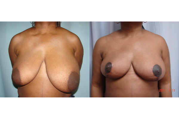 breast-reduction-before-and-after-virginia-beach-plastic-surgeon-VA-103-JSJ