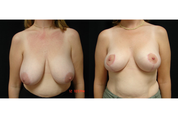 breast-reduction-before-and-after-virginia-beach-plastic-surgeon-VA-104-JSA