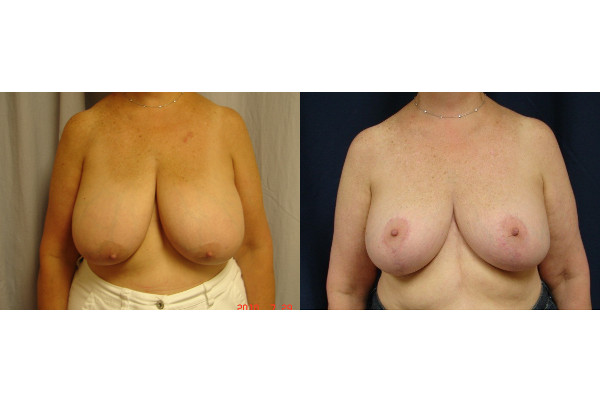 breast-reduction-before-and-after-virginia-beach-plastic-surgeon-VA-104-JSJ