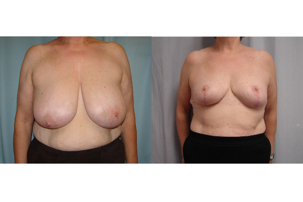 breast-reduction-before-and-after-virginia-beach-plastic-surgeon-VA-105-JSJ