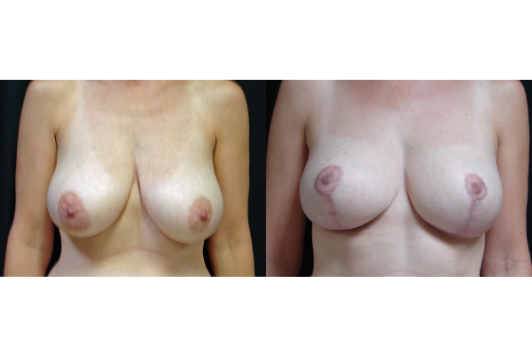 breast-reduction-before-and-after-virginia-beach-plastic-surgeon-VA-106-JSA