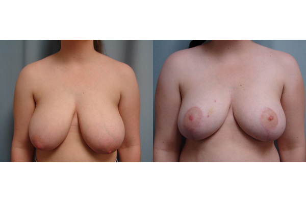 breast-reduction-before-and-after-virginia-beach-plastic-surgeon-VA-106-JSJ
