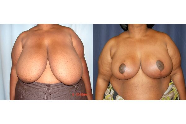 breast-reduction-before-and-after-virginia-beach-plastic-surgeon-VA-107-JSJ