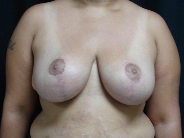 breast-reduction-post-op-1-virginia-beach-plastic-surgeon-VA-101-JSA