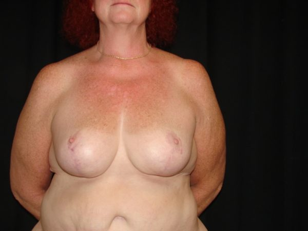 breast-reduction-post-op-1-virginia-beach-plastic-surgeon-VA-101-MJD