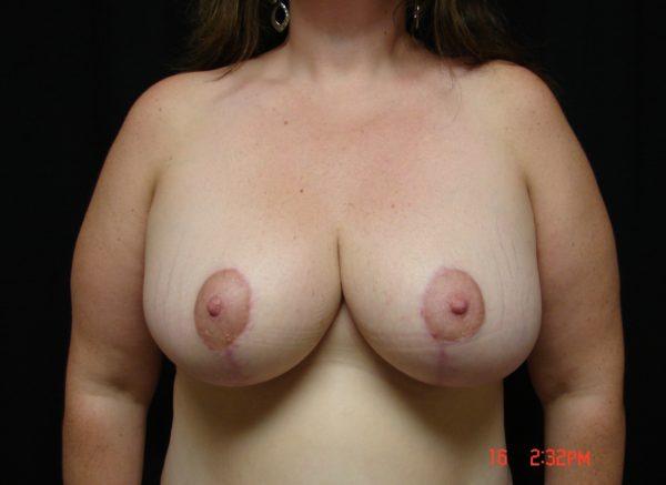 breast-reduction-post-op-1-virginia-beach-plastic-surgeon-VA-102-JSJ