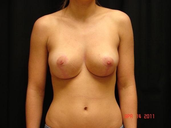 breast-reduction-post-op-1-virginia-beach-plastic-surgeon-VA-103-JSA