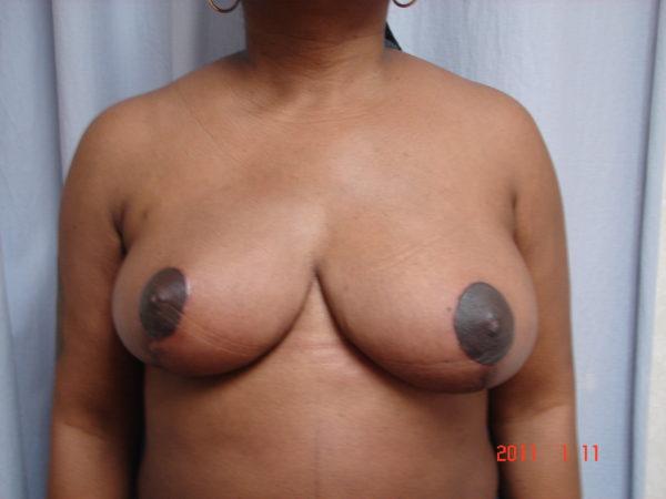 breast-reduction-post-op-1-virginia-beach-plastic-surgeon-VA-103-JSJ