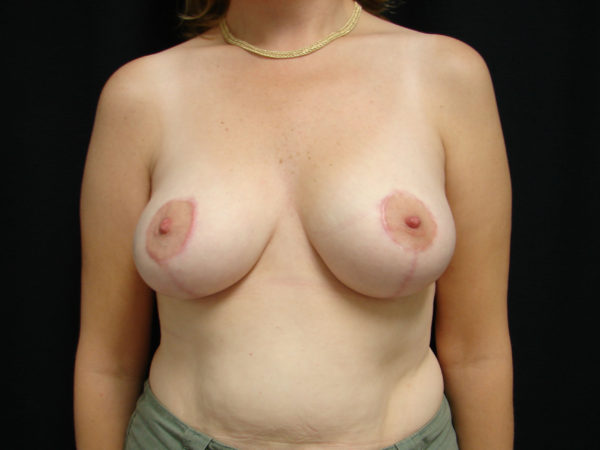 breast-reduction-post-op-1-virginia-beach-plastic-surgeon-VA-104-JSA