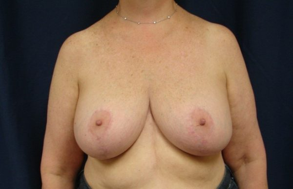 breast-reduction-post-op-1-virginia-beach-plastic-surgeon-VA-104-JSJ