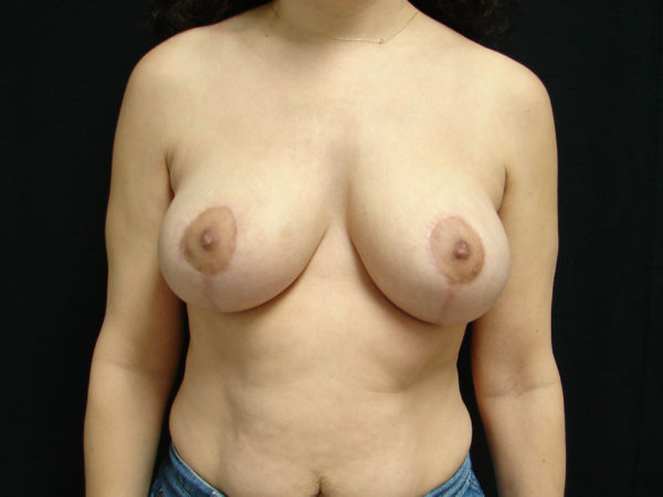 breast-reduction-post-op-1-virginia-beach-plastic-surgeon-VA-105-JSA