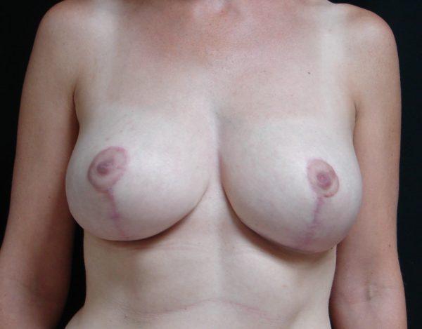 breast-reduction-post-op-1-virginia-beach-plastic-surgeon-VA-106-JSA