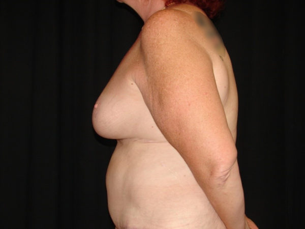 breast-reduction-post-op-2-virginia-beach-plastic-surgeon-VA-101-MJD