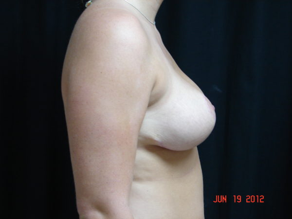 breast-reduction-post-op-2-virginia-beach-plastic-surgeon-VA-102-JSA