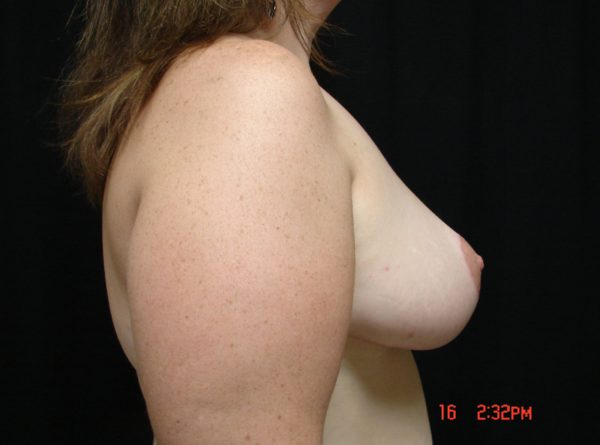 breast-reduction-post-op-2-virginia-beach-plastic-surgeon-VA-102-JSJ