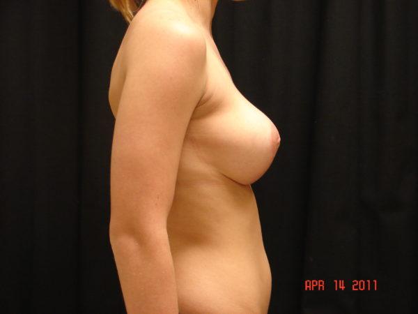 breast-reduction-post-op-2-virginia-beach-plastic-surgeon-VA-103-JSA