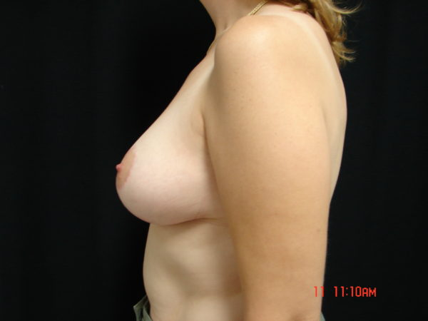 breast-reduction-post-op-2-virginia-beach-plastic-surgeon-VA-104-JSA