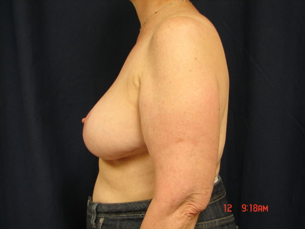 breast-reduction-post-op-2-virginia-beach-plastic-surgeon-VA-104-JSJ