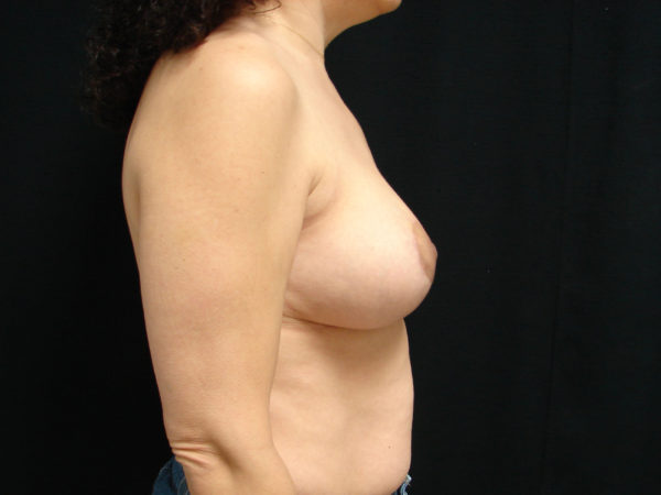 breast-reduction-post-op-2-virginia-beach-plastic-surgeon-VA-105-JSA