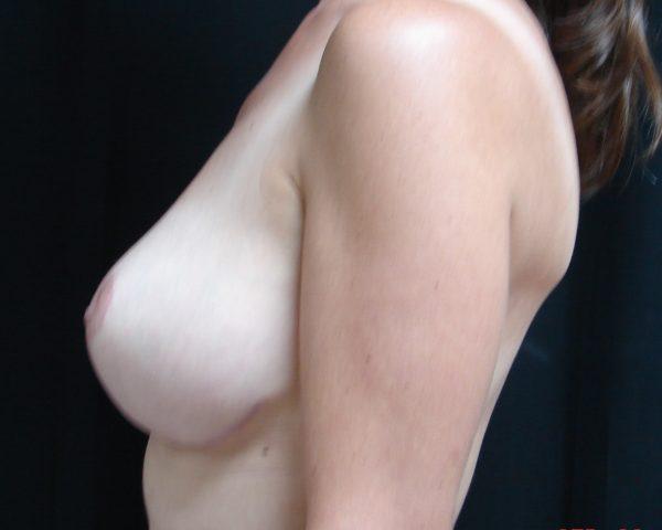 breast-reduction-post-op-2-virginia-beach-plastic-surgeon-VA-106-JSA