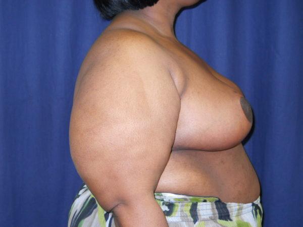 breast-reduction-post-op-2-virginia-beach-plastic-surgeon-VA-107-JSJ