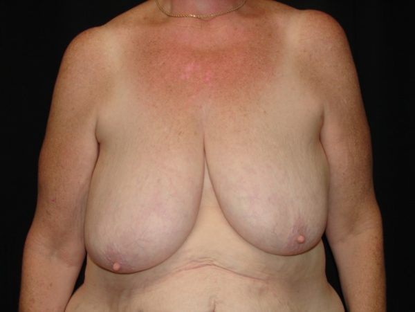 breast-reduction-pre-op-1-virginia-beach-plastic-surgeon-VA-101-MJD