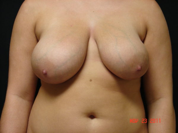 breast-reduction-pre-op-1-virginia-beach-plastic-surgeon-VA-102-JSA