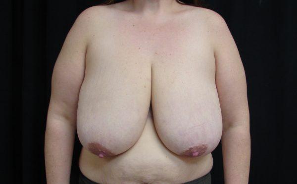 breast-reduction-pre-op-1-virginia-beach-plastic-surgeon-VA-102-JSJ