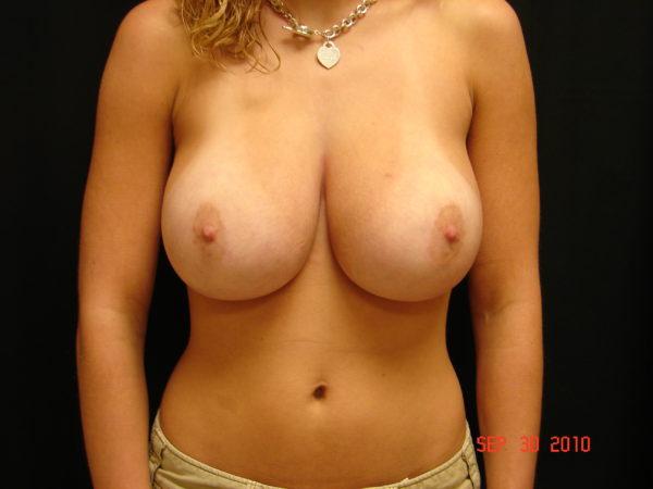 breast-reduction-pre-op-1-virginia-beach-plastic-surgeon-VA-103-JSA