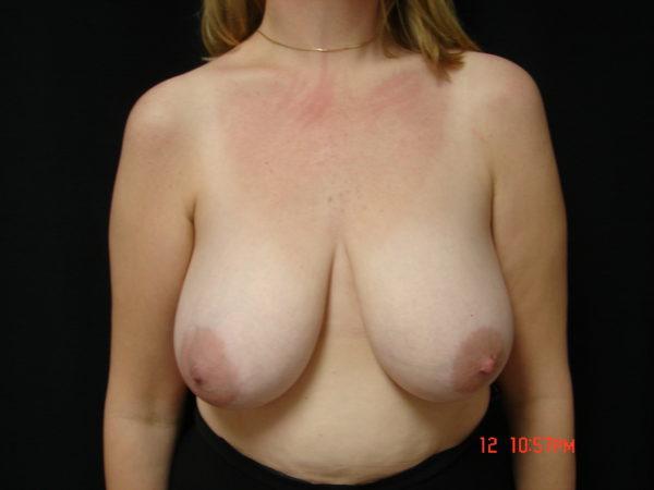 breast-reduction-pre-op-1-virginia-beach-plastic-surgeon-VA-104-JSA