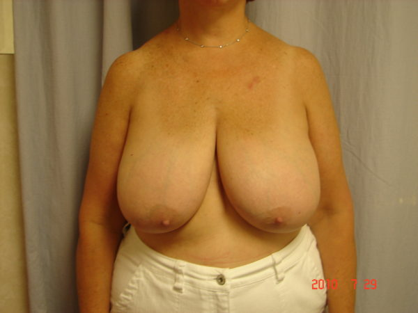 breast-reduction-pre-op-1-virginia-beach-plastic-surgeon-VA-104-JSJ