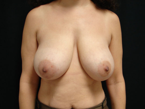 breast-reduction-pre-op-1-virginia-beach-plastic-surgeon-VA-105-JSA