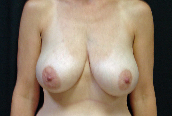 breast-reduction-pre-op-1-virginia-beach-plastic-surgeon-VA-106-JSA