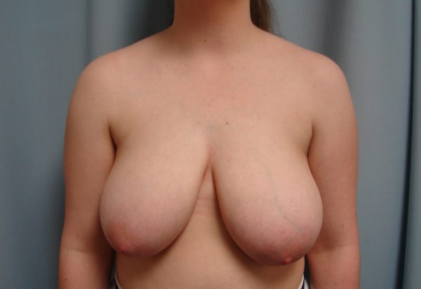 breast-reduction-pre-op-1-virginia-beach-plastic-surgeon-VA-106-JSJ
