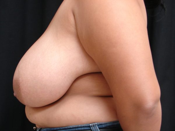 breast-reduction-pre-op-2-virginia-beach-plastic-surgeon-VA-101-JSA