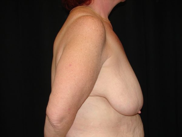 breast-reduction-pre-op-2-virginia-beach-plastic-surgeon-VA-101-MJD