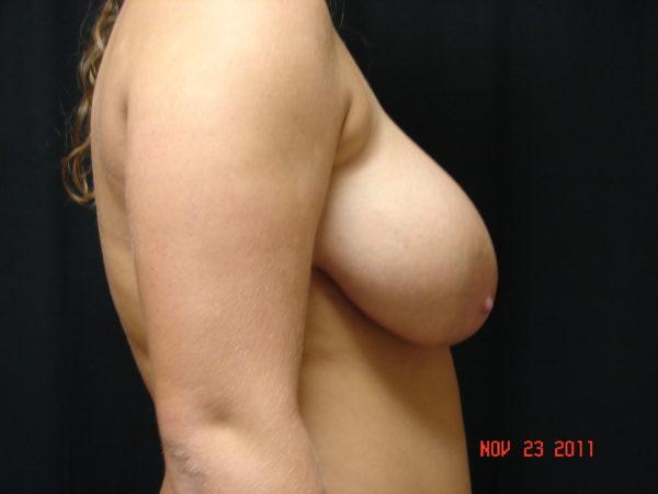 breast-reduction-pre-op-2-virginia-beach-plastic-surgeon-VA-102-JSA