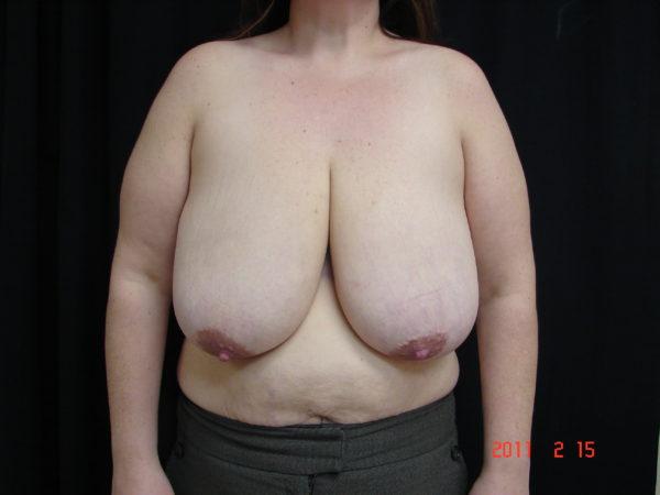 breast-reduction-pre-op-2-virginia-beach-plastic-surgeon-VA-102-JSJ