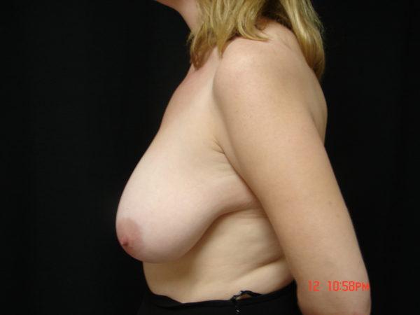 breast-reduction-pre-op-2-virginia-beach-plastic-surgeon-VA-104-JSA