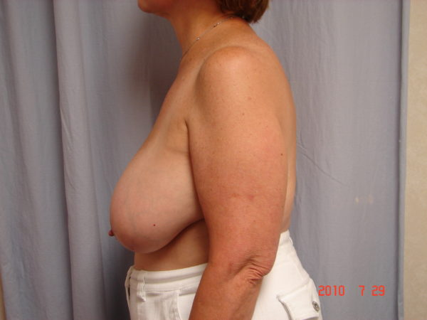 breast-reduction-pre-op-2-virginia-beach-plastic-surgeon-VA-104-JSJ