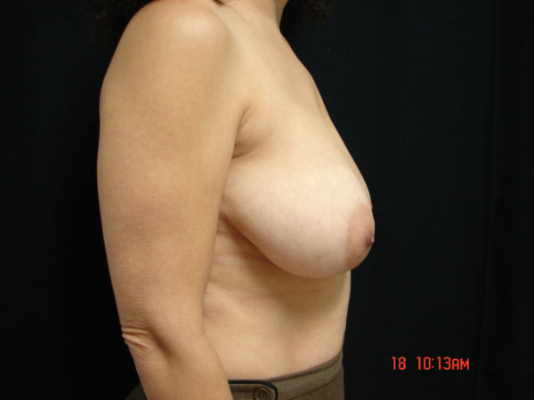 breast-reduction-pre-op-2-virginia-beach-plastic-surgeon-VA-105-JSA
