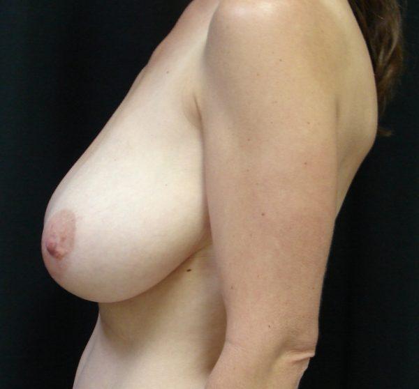 breast-reduction-pre-op-2-virginia-beach-plastic-surgeon-VA-106-JSA